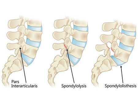 Spondylolisthesis Treatment in NJ | Pain Management Doctor, Specialist