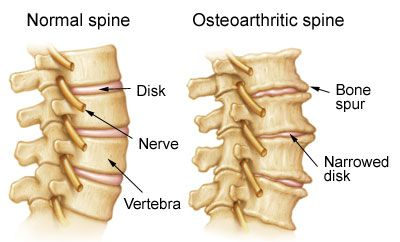 Treatment of Arthritis in the Neck in NJ | Pain Management Doctor