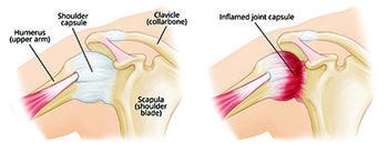 Frozen Shoulder, Adhesive Capsulitis Treatment in New Jersey