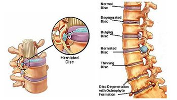 Herniated Discs Treatment in NJ   Pain Management Doctor, Specialist
