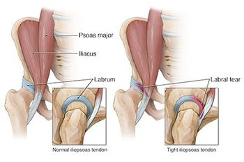 Hip Tendonitis Treatment in NJ | Pain Management Doctor, Specialist