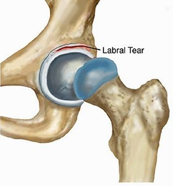 Labral Tear Treatment in NJ | Pain Management Doctor, Specialist