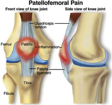 Patellofemoral Pain Syndrome Treatment in NJ | Pain Management Doctor