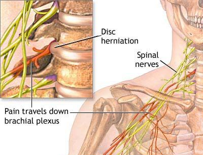 The 8-Second Trick For Pinched Nerve Elbow Relief